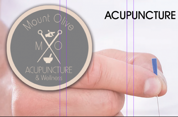 Acupuncture… What's The Point?