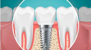 DENTAL DIGEST  4 Myths Regarding Dental Implants